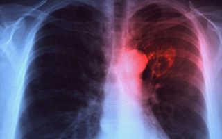 Сколько живут с туберкулезом легких