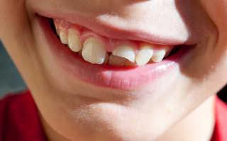 Что делать если сломался зуб