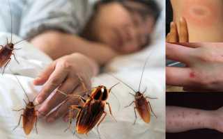 Кусают ли домашние тараканы человека