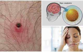 Что делать если укусил энцефалитный клещ