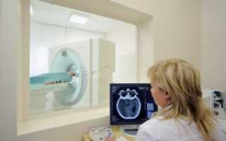 Что показывает томография головного мозга
