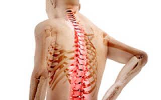 Что делать при болях в позвоночнике