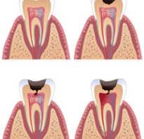Какая часть зуба поражается при возникновении кариеса