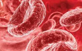 Что означает гемоглобин в моче
