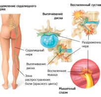 Какие лекарства помогут при защемлении седалищного нерва